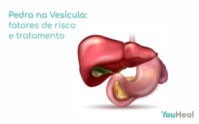 Pedras na vesícula: fatores de risco e tratamento