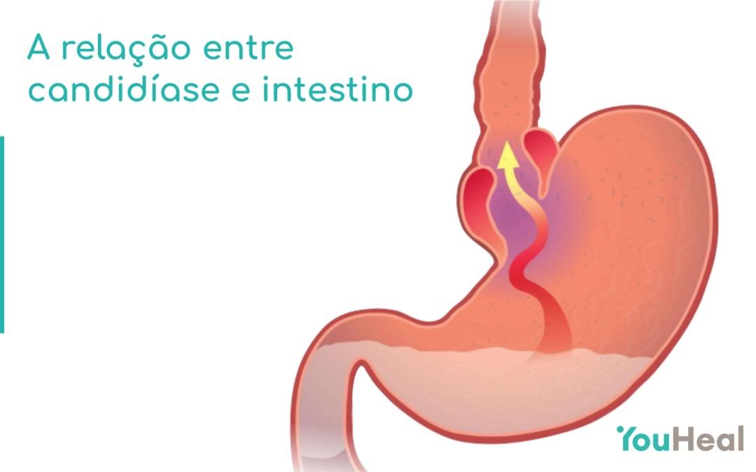 A relação entre candidíase e intestino